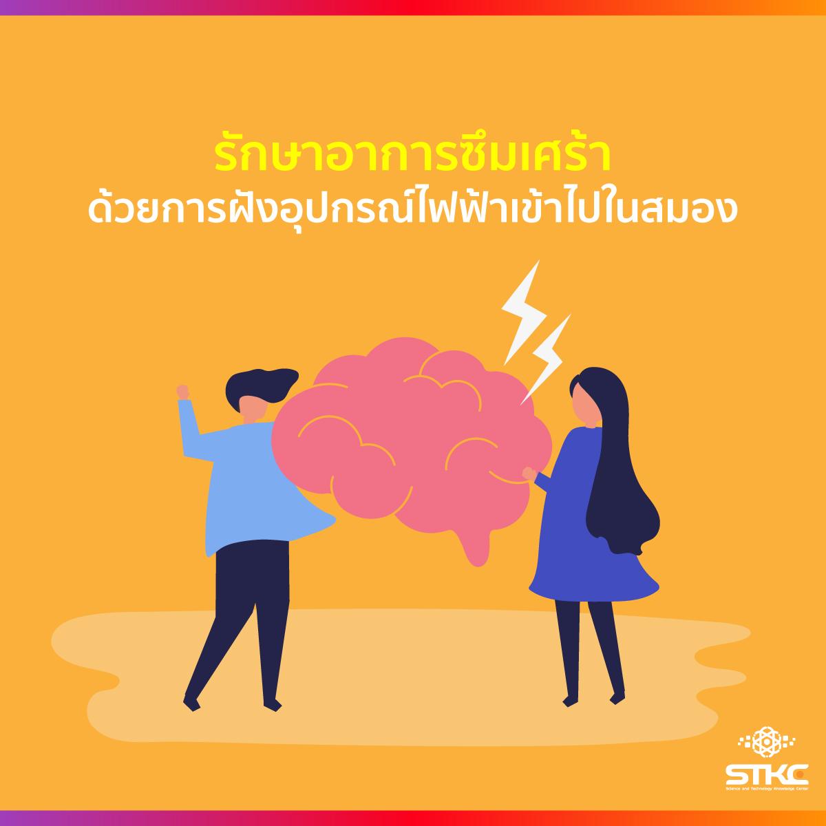 รักษาอาการซึมเศร้าด้วยการฝังอุปกรณ์ไฟฟ้าเข้าไปในสมอง